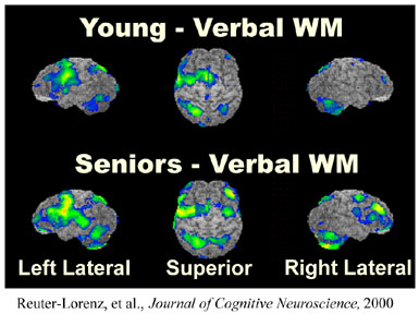comparisons of PET images of youngand aged brains