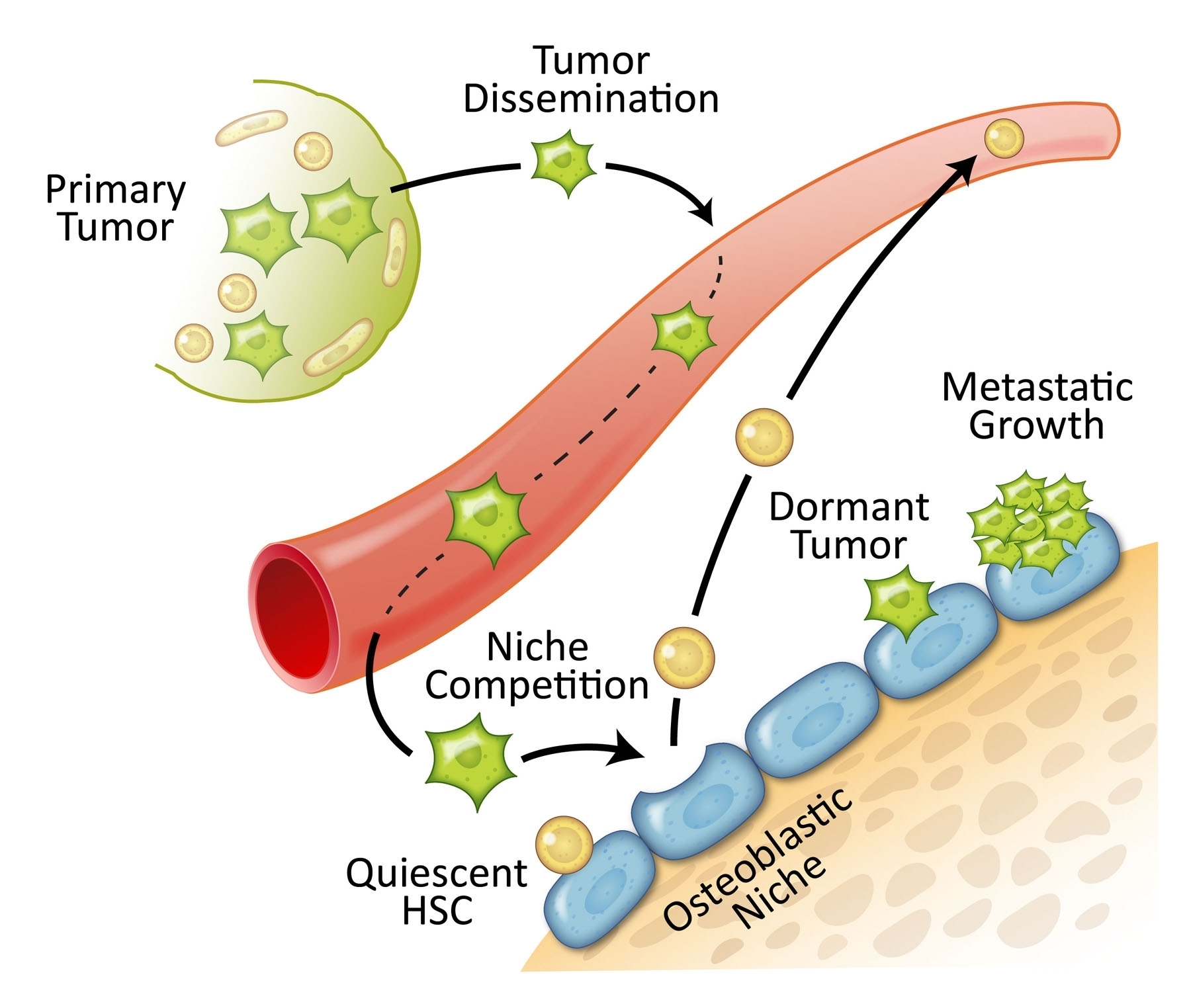 Prostate cancer cells in the bone marrow niche